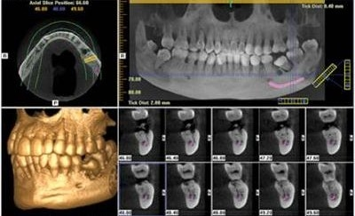Dental Tomografi